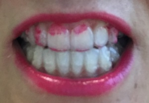 lisptick-teeth